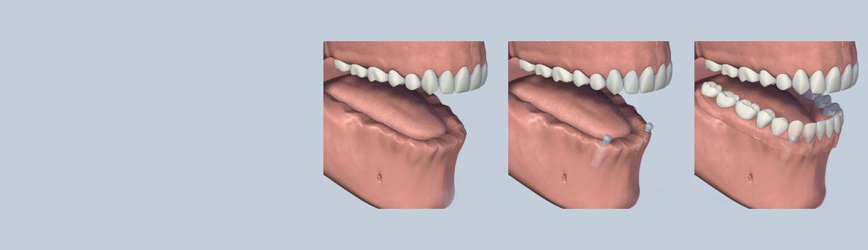 dental_implant_retained_dentures