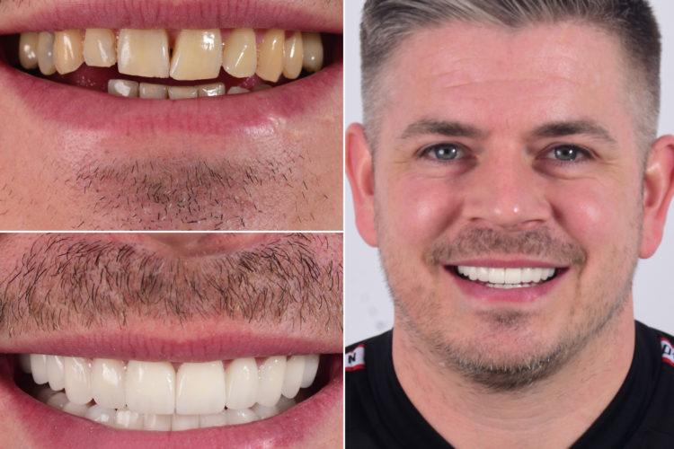dental implant turkey before after