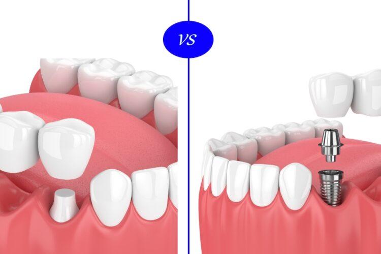 dental-implants-vs-dental-bridge
